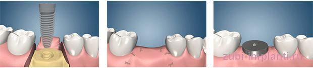 консервативная методика имплантации зубов