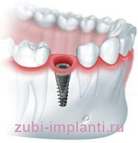 Одномоментная имплантация зубов после удаления зуба