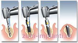 установка имплантата процесс