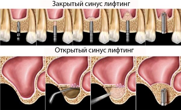 различия открытого и закрытого синус лифтинга