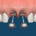 Имплантация для восстановления нескольких зубов