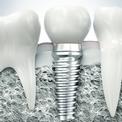 Имплантация зубов за 3 минуты