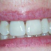 Восстановление переднего зуба с помощью классической имплантации