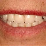 Имплантация при полном отсутствии зубов