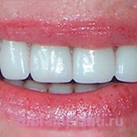 Имплантация полной челюсти