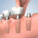 Отсутствие нескольких зубов - лечение