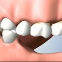 Отсутствие нескольких зубов - негативные последствия