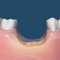 Уменьшение кости после удаления зуба