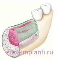 Процесс имплантации в костную ткань
