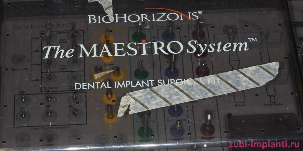 external implant system (maestro)