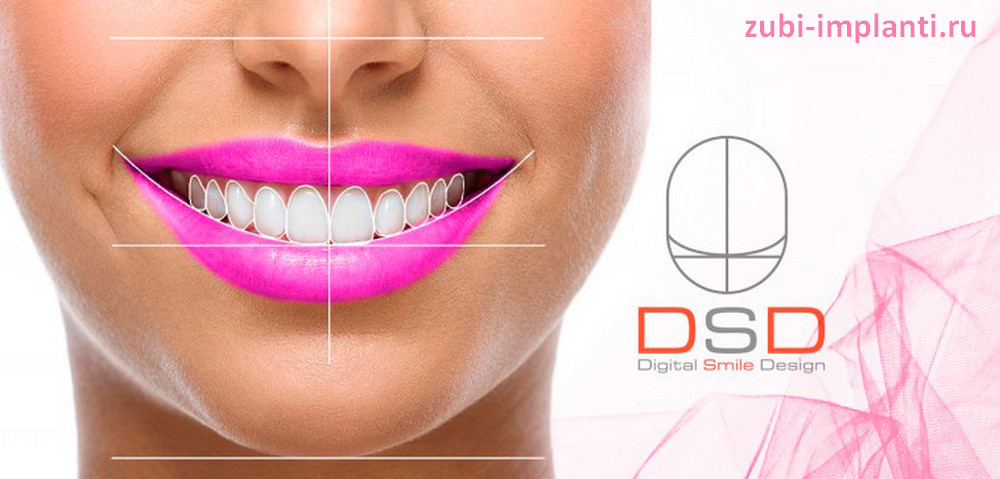 Для чего используется Digital Smile Design
