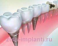 Как правильно - зубные импланты или имплантаты