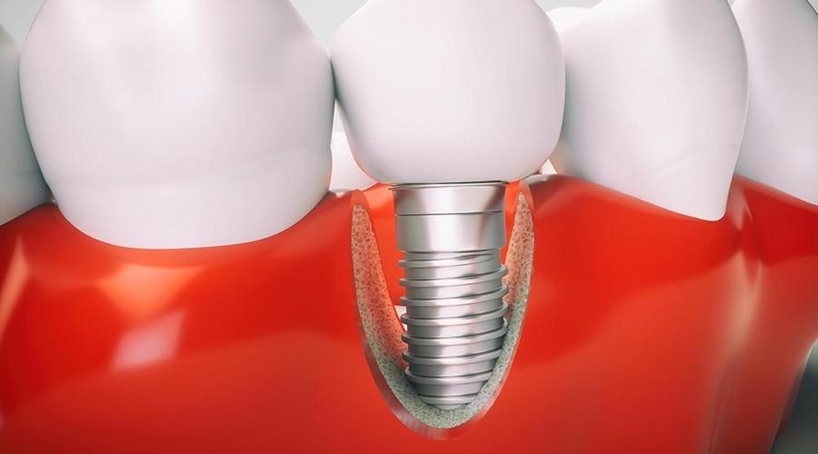 как поведут себя зубные импланты при проведении мрт