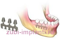 plate_dental_implant