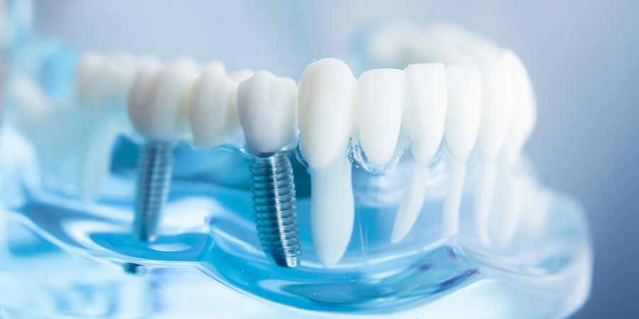 титановые зубные протезы и мрт