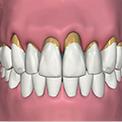 Болезни способствующие атрофии костной ткани и потери зубов