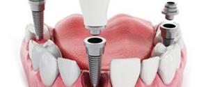 имплантация зуба 20000р.