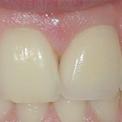 Восстановление переднего зуба