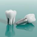 Имплантация зуба мудрости
