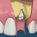 Наращивание кости с одновременной имплантацией зубов