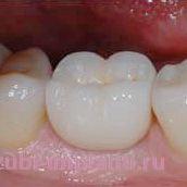 Классическая имплантация жевательного зуба