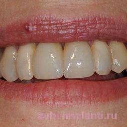 Одномоментная имплантация после удаления зубов