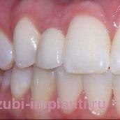 Восстановление одного переднего зуба