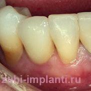Классическая имплантация переднего зуба