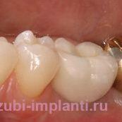 Восстановление жевательного зуба