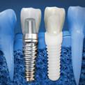 Какие импланты для зубов лучше
