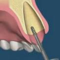 Имплантация с моментальной нагрузкой