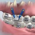 Ортодонтические зубные имплантаты