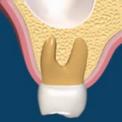 Отсроченная методика установки имплантата после удаления зуба