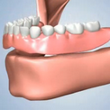 Отсутствие всех зубов - сравнение вариантов лечения
