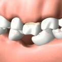 Один отсутствующий зуб - негативные последствия