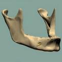 Процесс атрофии костной ткани и его последствия