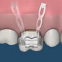 Предотвращение потери зуба с помощью мини имплантатов