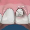 Предотвращение атрофии костной ткани после удаления зуба