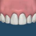 Преимущества имплантации перед установкой зубного протеза