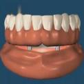 Имплантаты для поддержания съемных протезов во рту