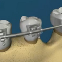 Стимуляция роста костной ткани ортодонтическими конструкциями