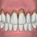 Уменьшение кости из-за пародонтита