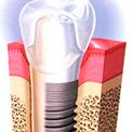 способы установки зубных имплантов