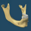 Утрата нижних задних зубов