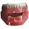 Внутрислизистые зубные импланты