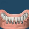 Зубной мост на нескольких имплантах